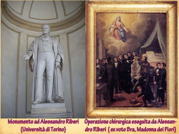 Alessandro Riberi: pioniere torinese della chirurgia