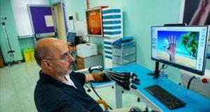 Ospedale Molinette, mano robotica per la riabilitazione post ictus