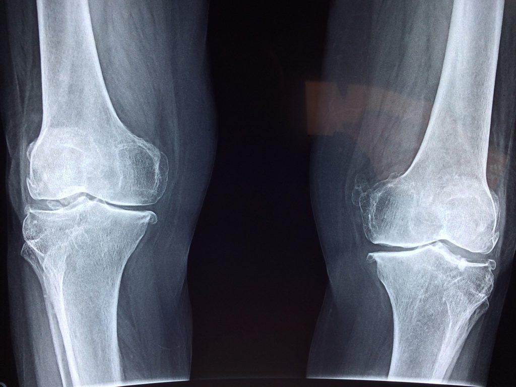 Ricerca Ortopedia