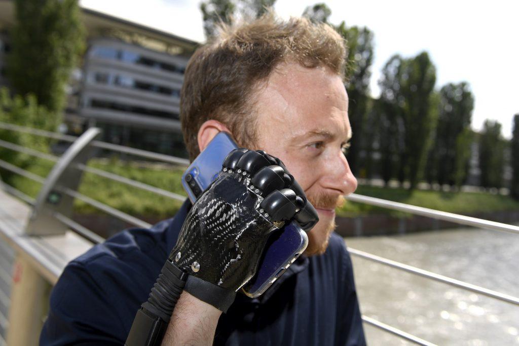 Torino Protesi Bionica