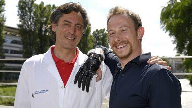 Photo of Torino, la protesi bionica regala una nuova vita al ragazzo che aveva perso la mano